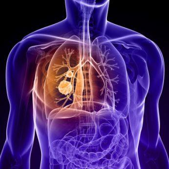 lungs disease